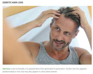 problemi capelli